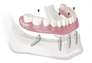 dental implants, dental implants nyc, mini dental implants, dental mini implants,