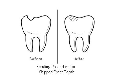 bonding for chipped front tooth, michael sinkin dds, nyc dentist