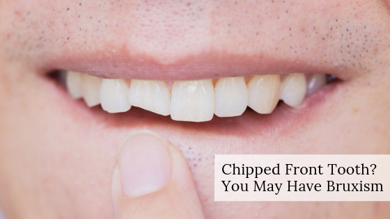 chipped_front_tooth_bruxism_michaelsinkindds.com_chippedfronttooth